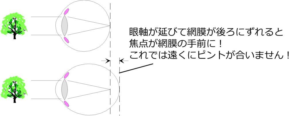 軸性近視1